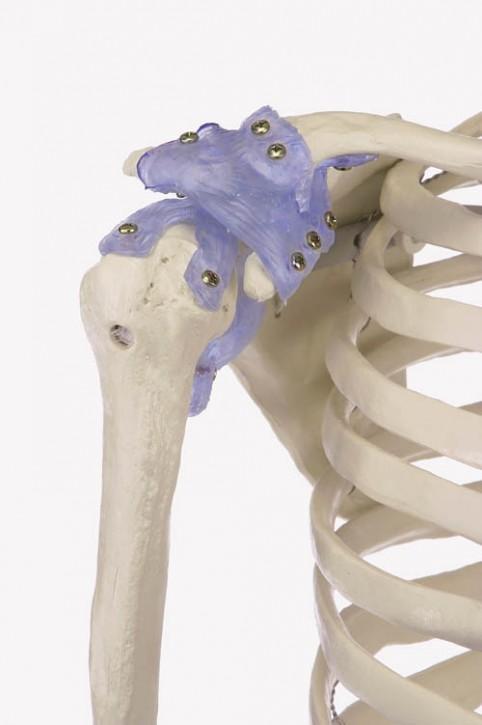 """Skelett """"Otto"""" starre Wirbelsäule mit Ansicht des Bandapparates"""