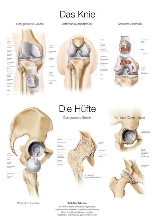 Das Knie / Die Hüfte